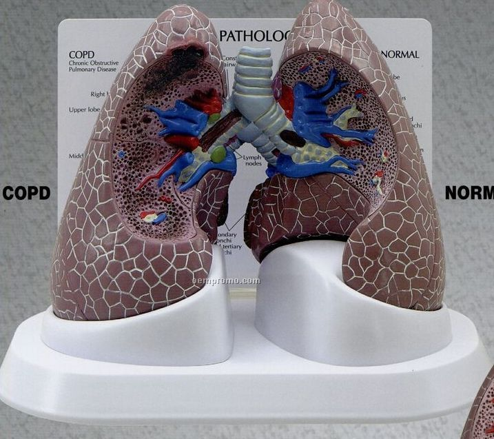 Anatomical Lung Model Set W/ Pathologies (Normal + 3 Conditions)